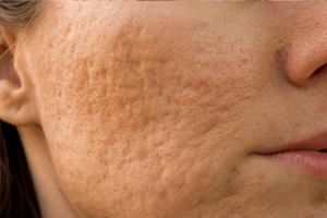 Skin Conditions Acne Scars London 2