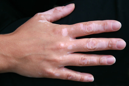 Vitiligo Hands London