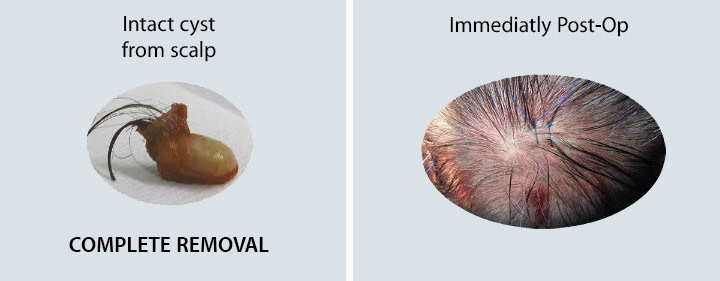 Cyst Scalp Removal