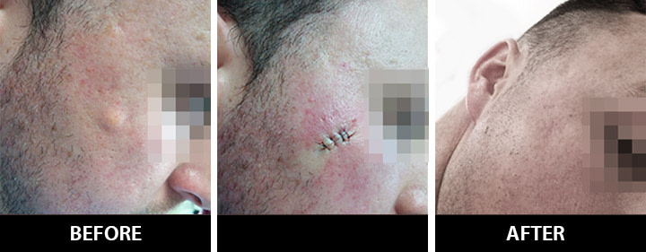 Cyst Before and After